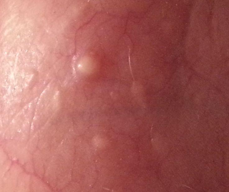 Bilder von HPV im Hals